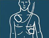 FRx Defibrillator Pad Placement